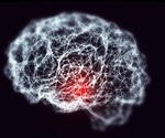 Magnetic Resonance Imaging of Noradrenergic Neurons