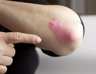 Cancer risk in psoriatic patients