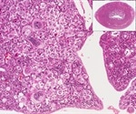 Scientists map molecular steps in the development of endometrial cancer