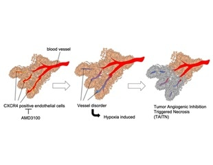 Damaging the tumor blood vessels could be new strategy to treat oral cancer