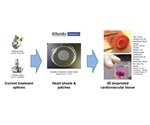 New 3D bioprinting technologies to create cardiovascular tissue