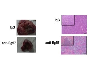 A promising strategy to overcome drug resistance developed by blood cancer cells