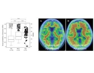 Researchers identify novel blood-based markers to detect Alzheimer's disease