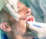 Are opioids necessary after tooth extraction?