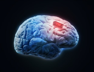 Engineers innovate soft, flexible brain implant