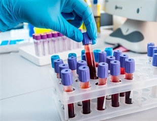 New blood test accurately detects more than 50 types of cancer