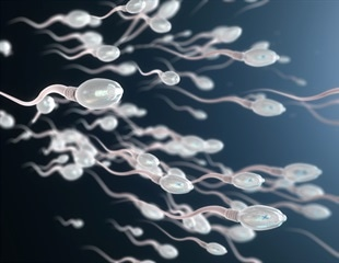 Key protein in sperm production could aid male infertility treatments