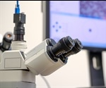 Benefits of Digital Pathology