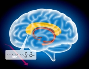 Schizophrenia related to abnormal fatty metabolism in the brain