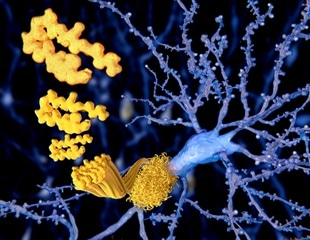 Alzheimer's disease: high amyloid levels linked to early disease
