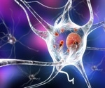 Mutated ATP1B gene a risk factor for Parkinson's