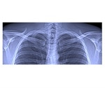 TUM researchers develop innovative x-ray method for lung diagnostics