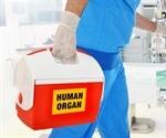 Organ transplantations plummet amid coronavirus pandemic