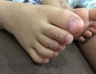 Kawasaki disease outbreak in children with COVID-19