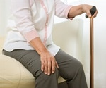 The number of people with osteoarthritis worldwide is on the rise