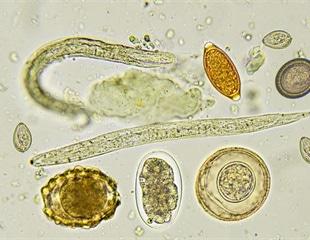Do parasites protect against SARS-CoV-2?
