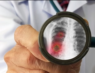 Why improved pneumonia diagnosis is needed now more than ever