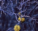 Using antibodies to detect Alzheimer's disease