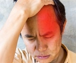 Excruciating cluster headaches often misdiagnosed