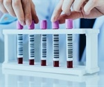 New blood test can detect prostate cancer and confirm the stage of the disease