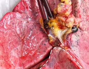 Human lungs rejected for transplant can be recovered using cross-circulation with pigs