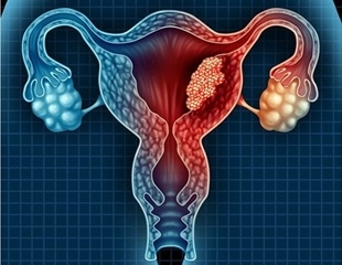 Newly discovered endometrial cancer biomarker enables early detection and treatment