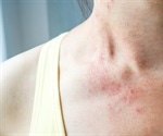 Skin rash may be a symptom of COVID-19