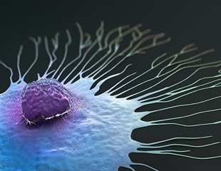 Gene could predict treatment response in certain breast cancer patients
