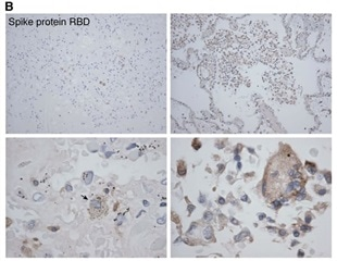 Lung tissue in fatal COVID-19 shows broad cell tropism and extensive damage