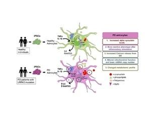 Study links brain astrocyte dysfunction to Parkinson's disease pathology
