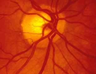COVID-19 can affect the retina