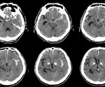 Strong causative link between smoking and bleeding in the brain