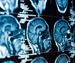 Surgery can be cost-effective and beneficial for epilepsy patients, study finds