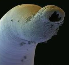 Clinical trials to test the safety of a first-of-its-kind human hookworm vaccine will begin in the Washington, DC area in a couple of months after the U.S. Food and Drug Administration conferred investigational new drug status on the vaccine.